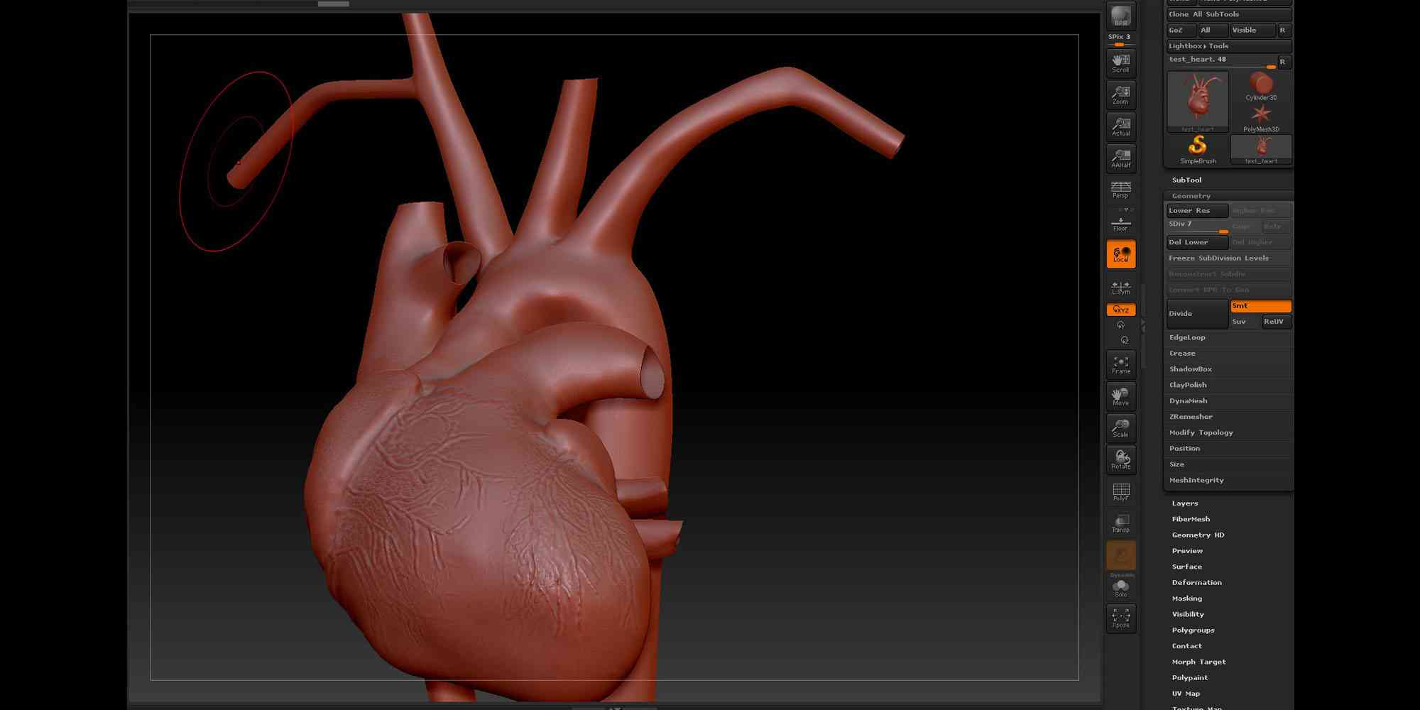 John McGhee's medical visualisations: Acute Coronary Syndrome