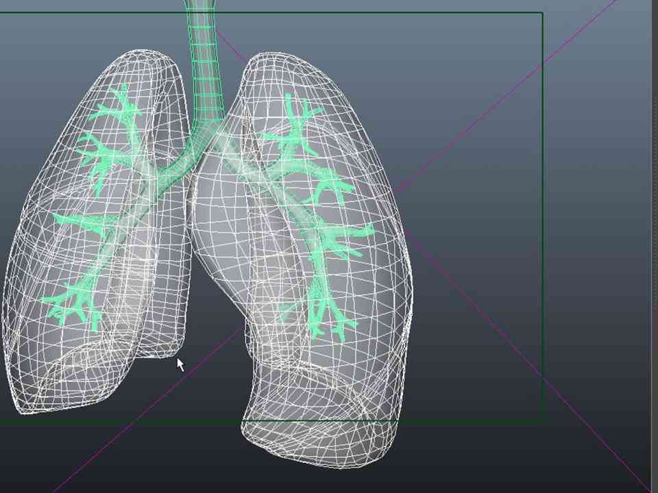 John McGhee's medical visualisations: Cystic Fibrosis